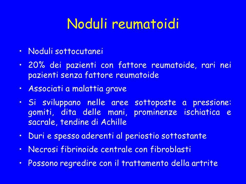 Noduli reumatoidi Noduli sottocutanei 20% dei pazienti con fattore reumatoide, rari nei pazienti senza fattore reumatoide Associati a malattia grave S