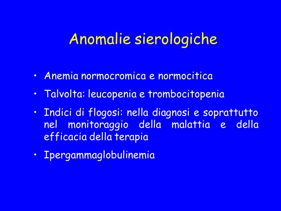 Anomalie sierologiche Anemia normocromica e normocitica Talvolta: leucopenia e trombocitopenia Indici di flogosi: nella diagnosi e soprattutto nel mon