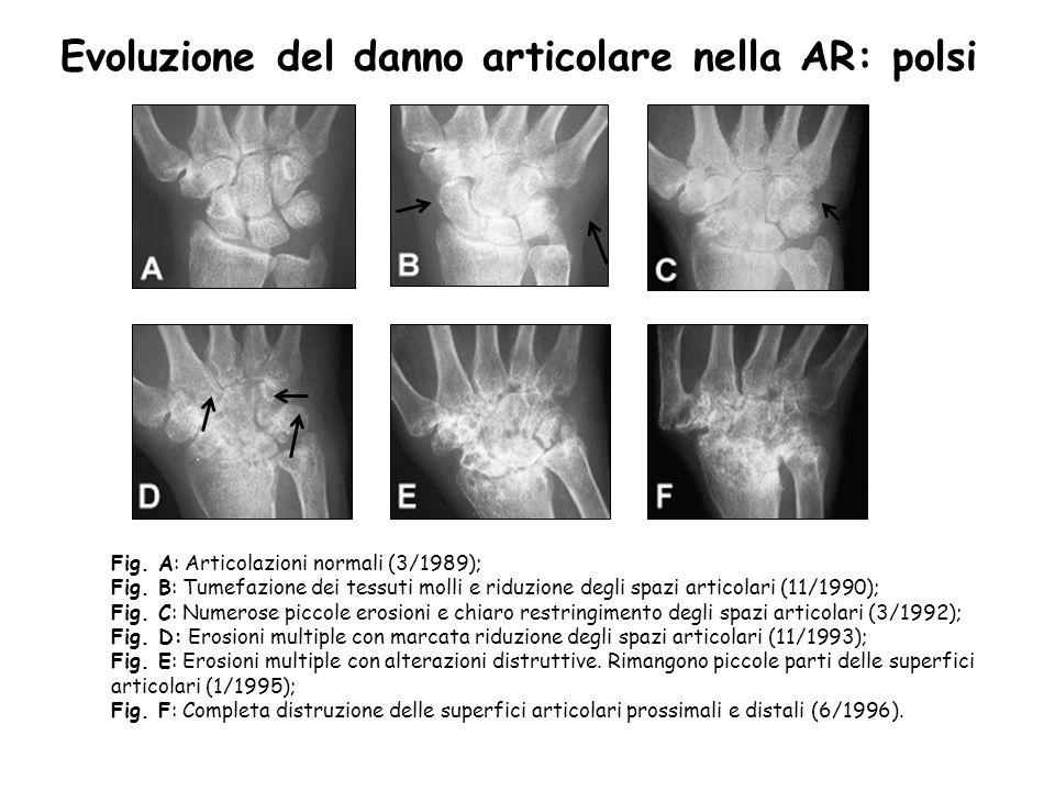 Fig. A: Articolazioni normali (3/1989); Fig. B: Tumefazione dei tessuti molli e riduzione degli spazi articolari (11/1990); Fig. C: Numerose piccole e
