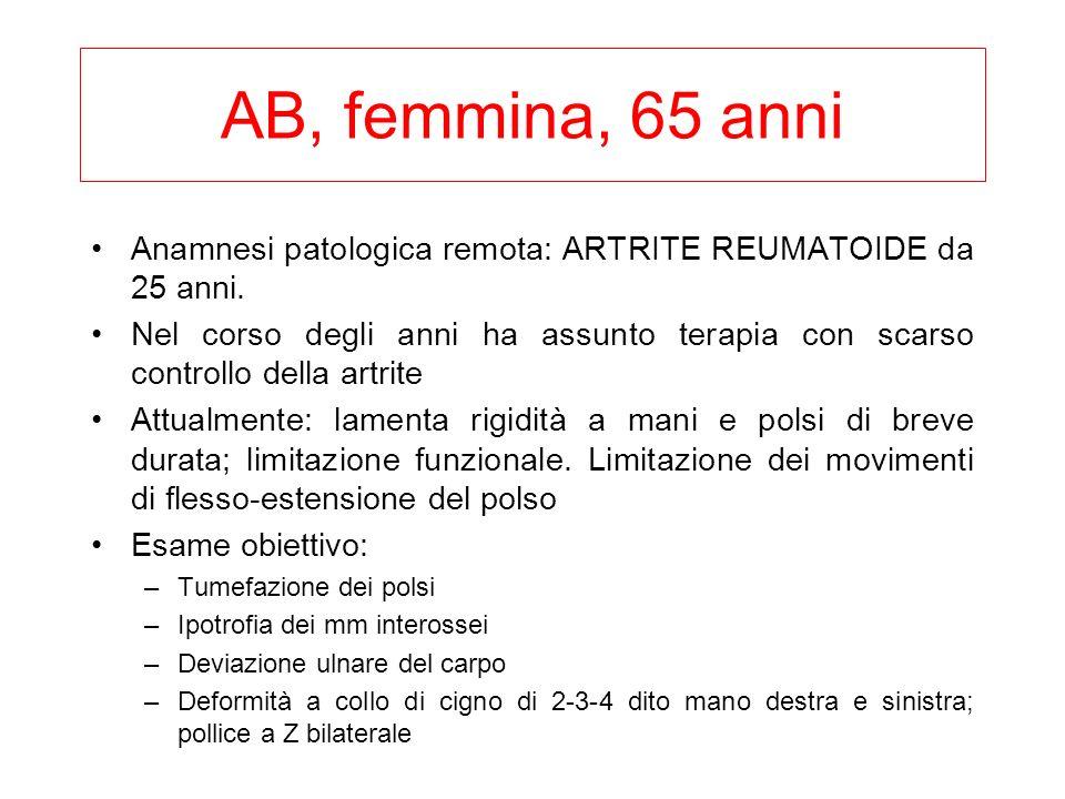 AB, femmina, 65 anni Anamnesi patologica remota: ARTRITE REUMATOIDE da 25 anni. Nel corso degli anni ha assunto terapia con scarso controllo della art