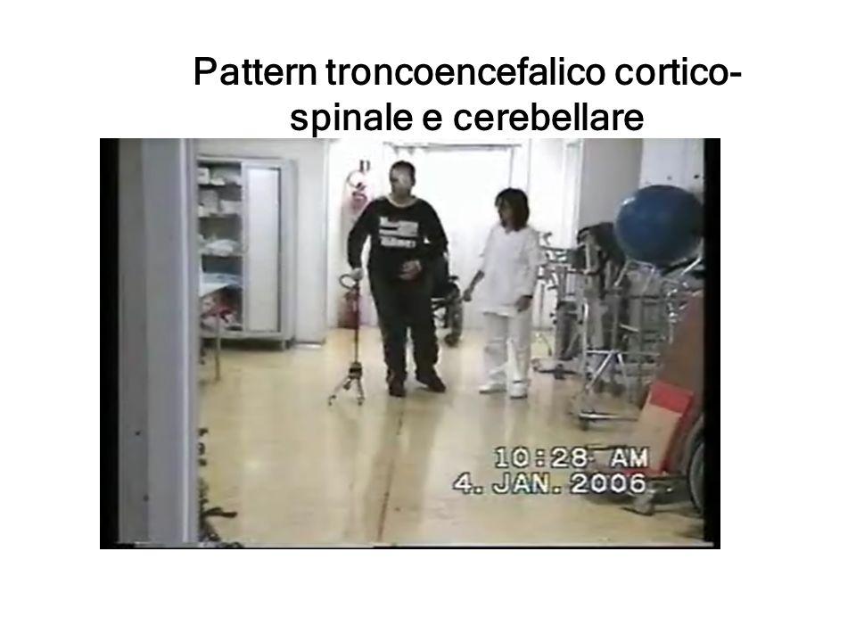 Pattern troncoencefalico cortico- spinale e cerebellare