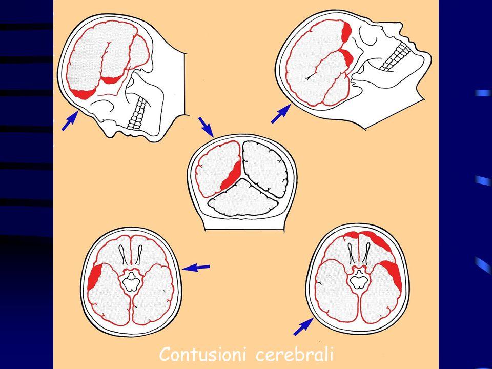 Contusioni cerebrali