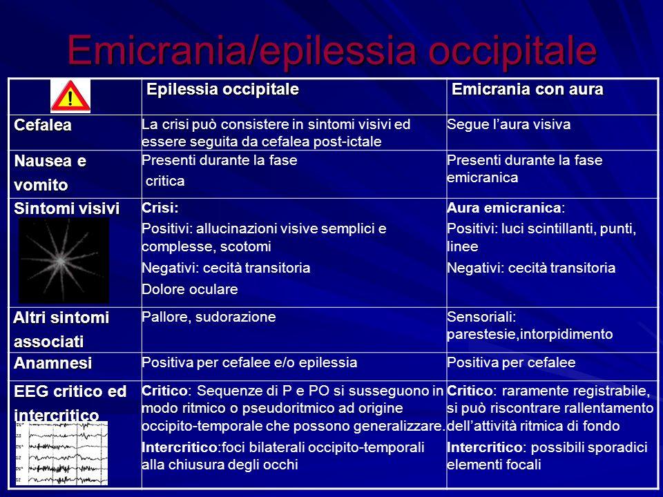 Emicrania/epilessia occipitale Epilessia occipitale Epilessia occipitale Emicrania con aura Emicrania con aura Cefalea Cefalea La crisi può consistere
