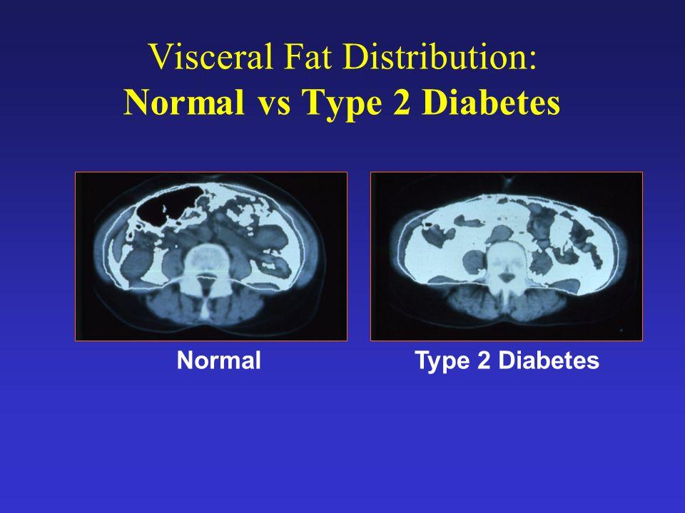 La Sindrome Metabolica L Incidenza è in rapido aumento sia negli USA che in Europa E in particolare aumento nella fascia di et à a partire dai 50 aa E correlata all aumento di obesit à