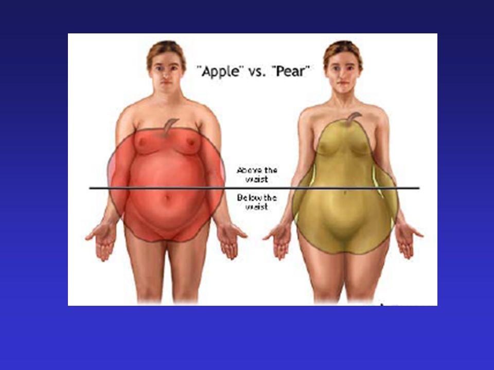 Sindrome Metabolica: una prima caratteristica saliente Tipologia fisica distintiva con circonferenza addominale aumentata