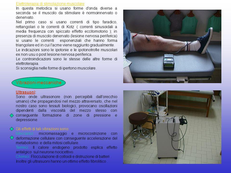 Elettroterapia di stimolazione muscolare: In questa metodica si usano forme d'onda diverse a seconda se il muscolo da stimolare è normoinnervato o den