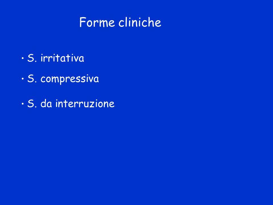Forme cliniche S. irritativa S. compressiva S. da interruzione