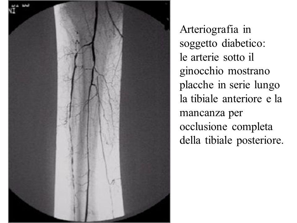 Arteriografia in soggetto diabetico: le arterie sotto il ginocchio mostrano placche in serie lungo la tibiale anteriore e la mancanza per occlusione c