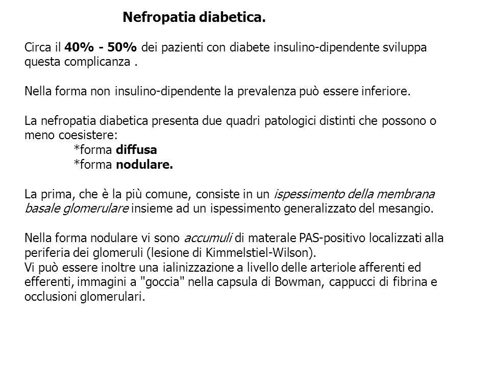 Nefropatia diabetica. Circa il 40% - 50% dei pazienti con diabete insulino-dipendente sviluppa questa complicanza. Nella forma non insulino-dipendente