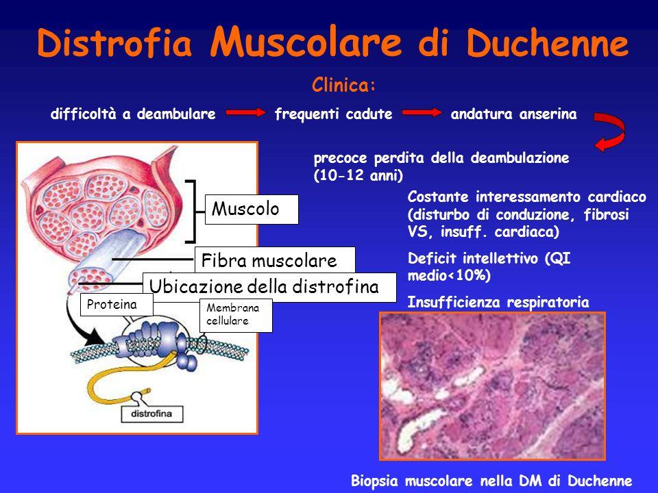Distrofia Muscolare di Duchenne Muscolo Fibra muscolare Ubicazione della distrofina Proteina Membrana cellulare Biopsia muscolare nella DM di Duchenne