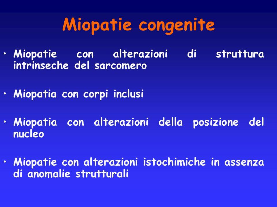Miopatie congenite Miopatie con alterazioni di struttura intrinseche del sarcomero Miopatia con corpi inclusi Miopatia con alterazioni della posizione