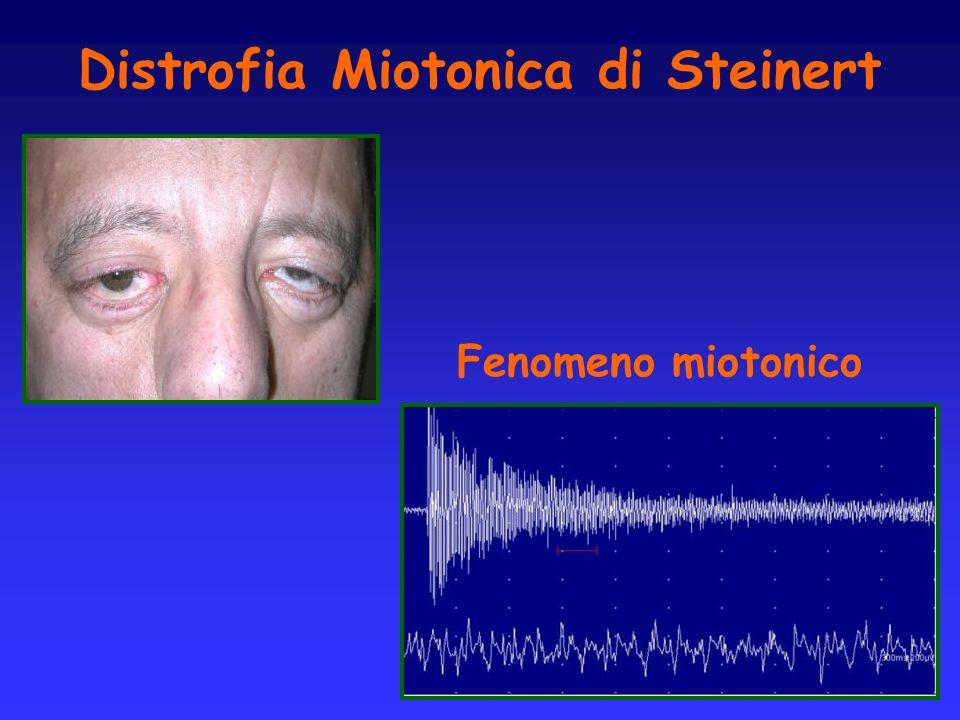 Distrofia Miotonica di Steinert Fenomeno miotonico