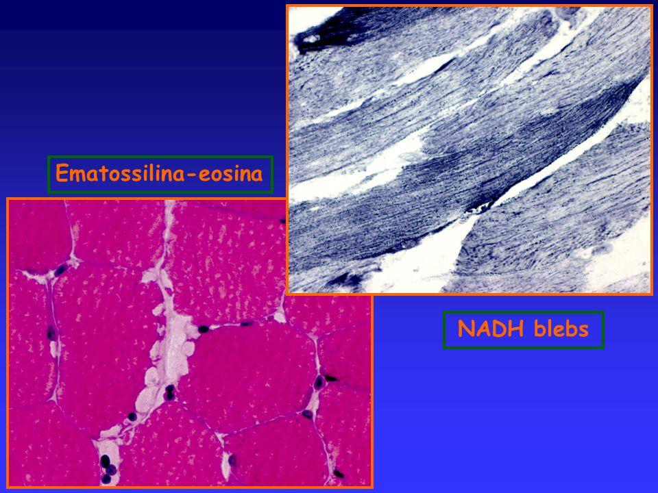Ematossilina-eosina NADH blebs