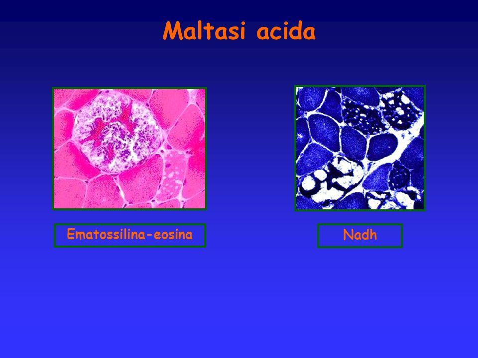 Maltasi acida Ematossilina-eosina Nadh