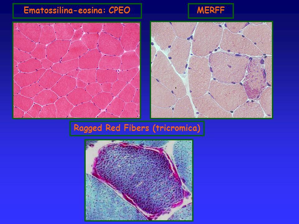 Ematossilina-eosina: CPEOMERFF Ragged Red Fibers (tricromica)