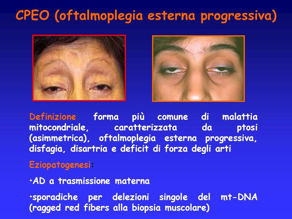 CPEO (oftalmoplegia esterna progressiva) Definizione: forma più comune di malattia mitocondriale, caratterizzata da ptosi (asimmetrica), oftalmoplegia