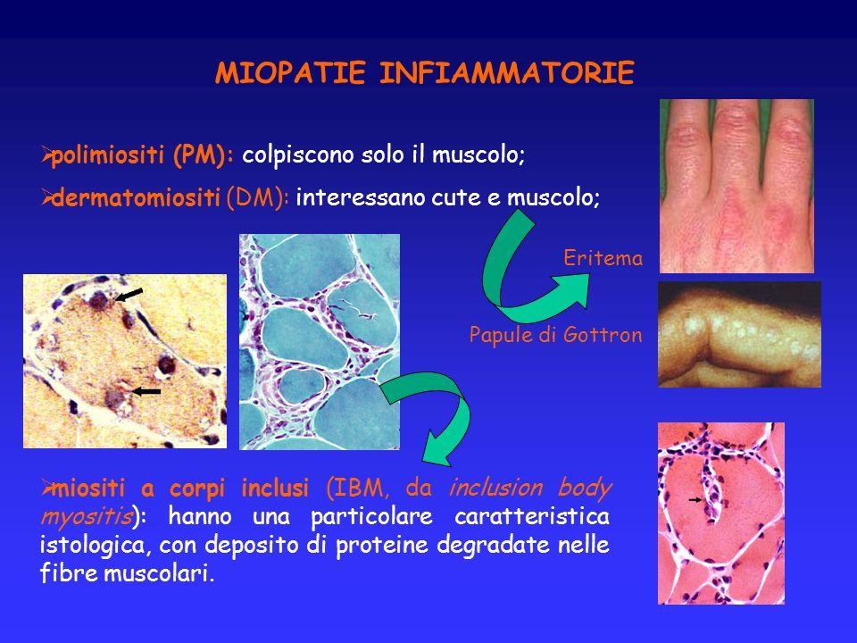 polimiositi (PM): colpiscono solo il muscolo; dermatomiositi (DM): interessano cute e muscolo; miositi a corpi inclusi (IBM, da inclusion body myositi