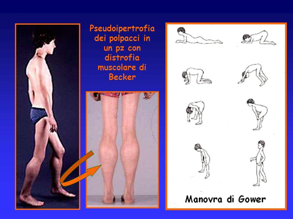 Pseudoipertrofia dei polpacci in un pz con distrofia muscolare di Becker