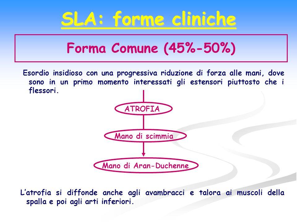 SLA: forme cliniche Forma Comune (45%-50%) Esordio insidioso con una progressiva riduzione di forza alle mani, dove sono in un primo momento interessa