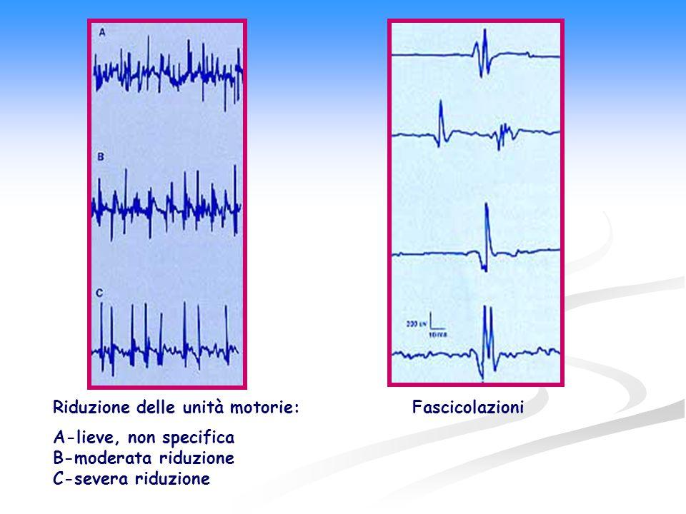 Riduzione delle unità motorie: A-lieve, non specifica B-moderata riduzione C-severa riduzione Fascicolazioni