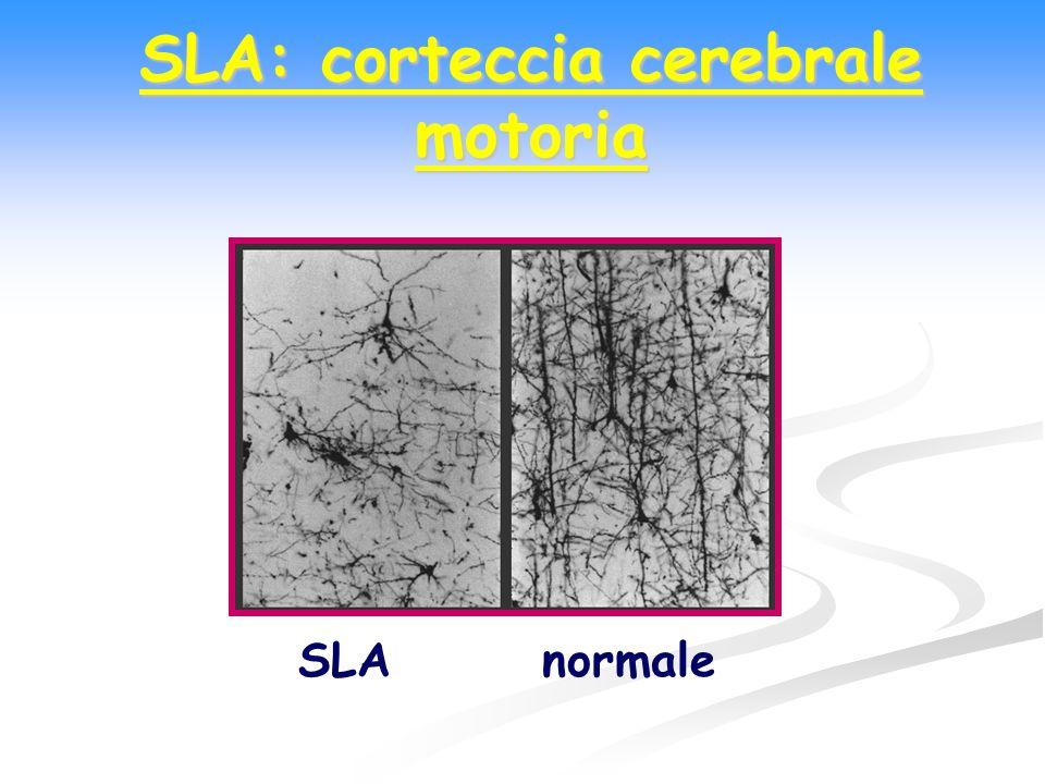 SLA: caratteristiche cliniche 1) 1)Motoneurone corticale (1°MN): deficit di forza; spasticità; labilità emotiva; ROT vivaci; Babinski positivo.