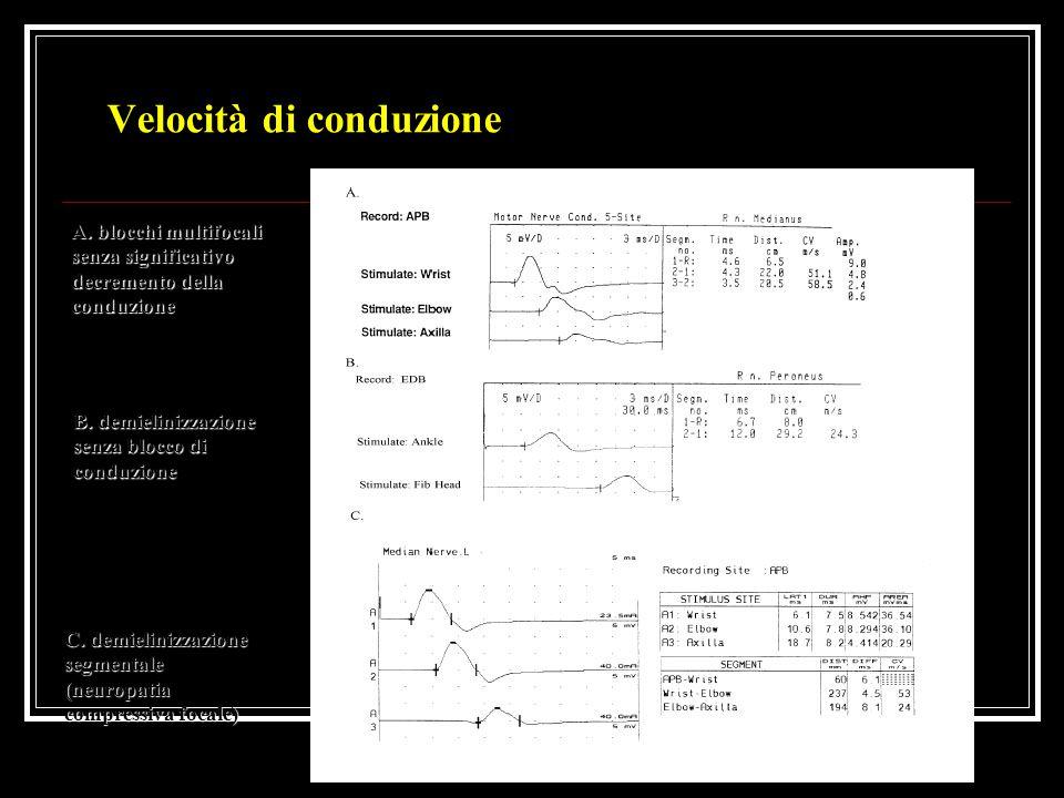 Velocità di conduzione A. blocchi multifocali senza significativo decremento della conduzione B. demielinizzazione senza blocco di conduzione C. demie