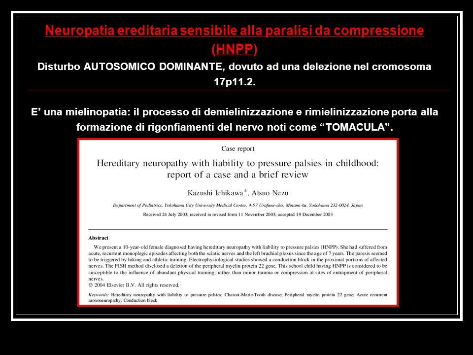 Neuropatia ereditaria sensibile alla paralisi da compressione (HNPP) Disturbo AUTOSOMICO DOMINANTE, dovuto ad una delezione nel cromosoma 17p11.2. E u