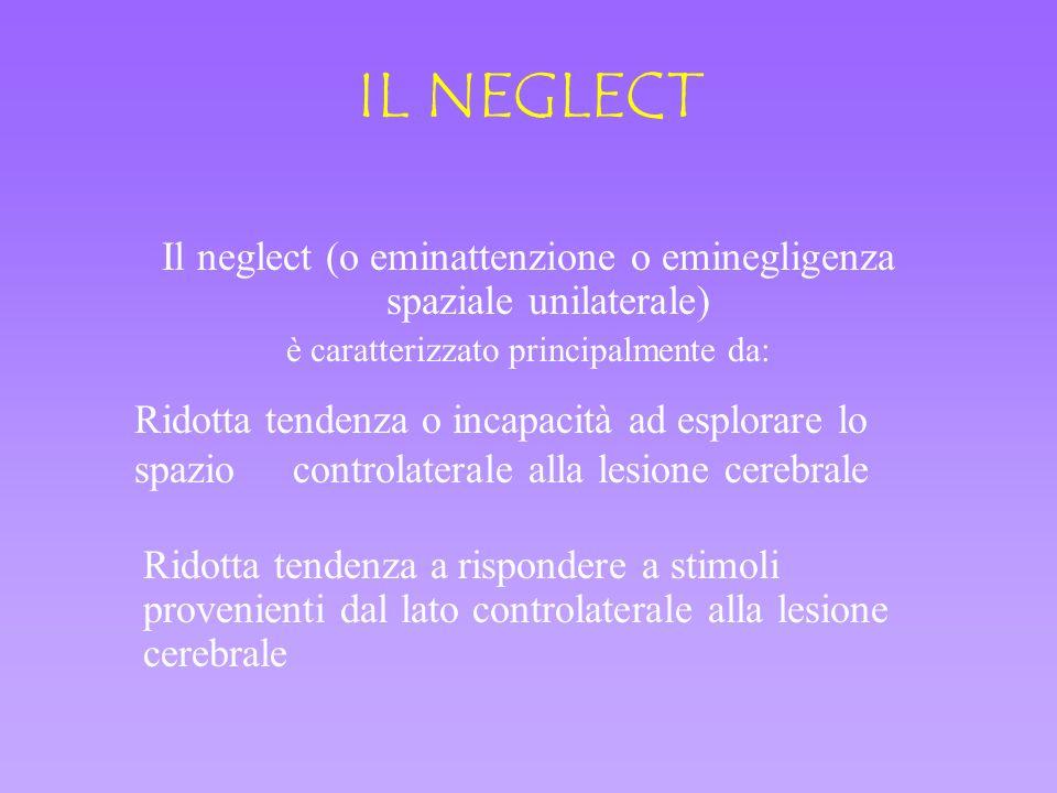 IL NEGLECT Il neglect (o eminattenzione o eminegligenza spaziale unilaterale) è caratterizzato principalmente da: Ridotta tendenza o incapacità ad esp