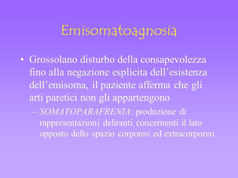 Emisomatoagnosia Grossolano disturbo della consapevolezza fino alla negazione esplicita dellesistenza dellemisoma, il paziente afferma che gli arti pa