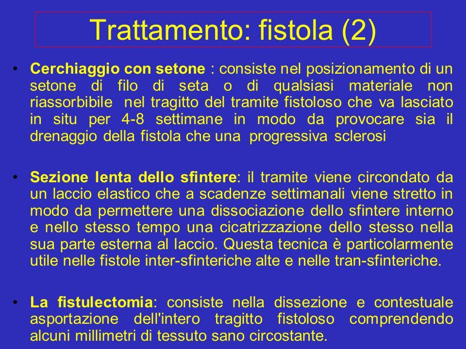 Trattamento: fistola (2) Cerchiaggio con setone : consiste nel posizionamento di un setone di filo di seta o di qualsiasi materiale non riassorbibile