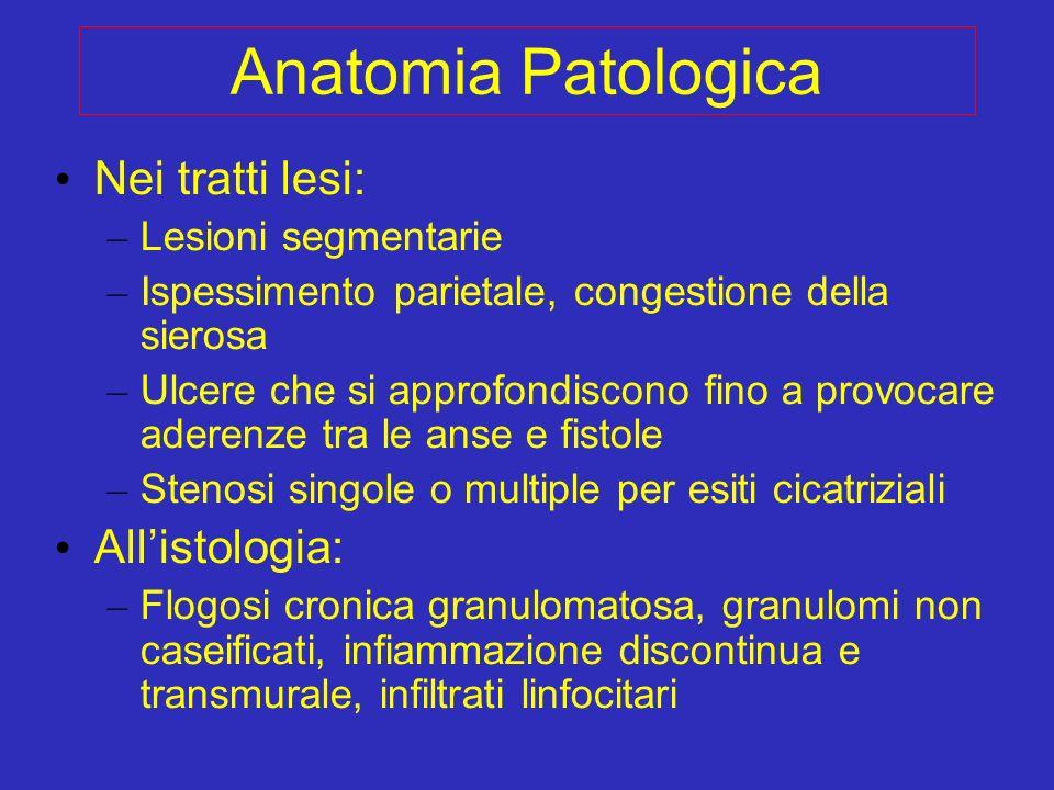 Anatomia Patologica Nei tratti lesi: – Lesioni segmentarie – Ispessimento parietale, congestione della sierosa – Ulcere che si approfondiscono fino a
