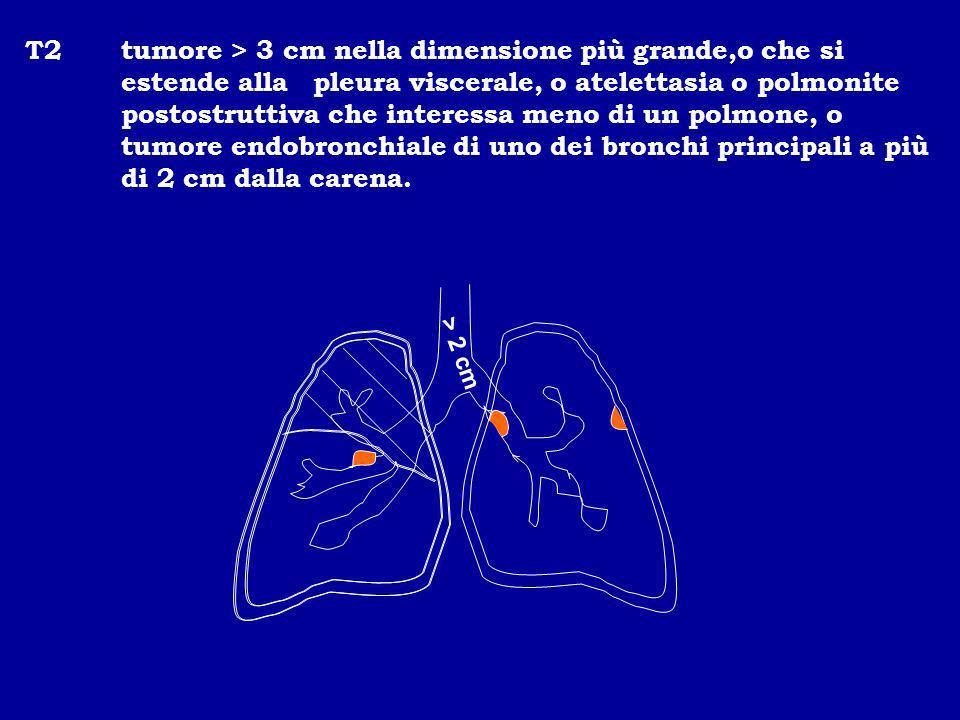 T2tumore > 3 cm nella dimensione più grande,o che si estende alla pleura viscerale, o atelettasia o polmonite postostruttiva che interessa meno di un