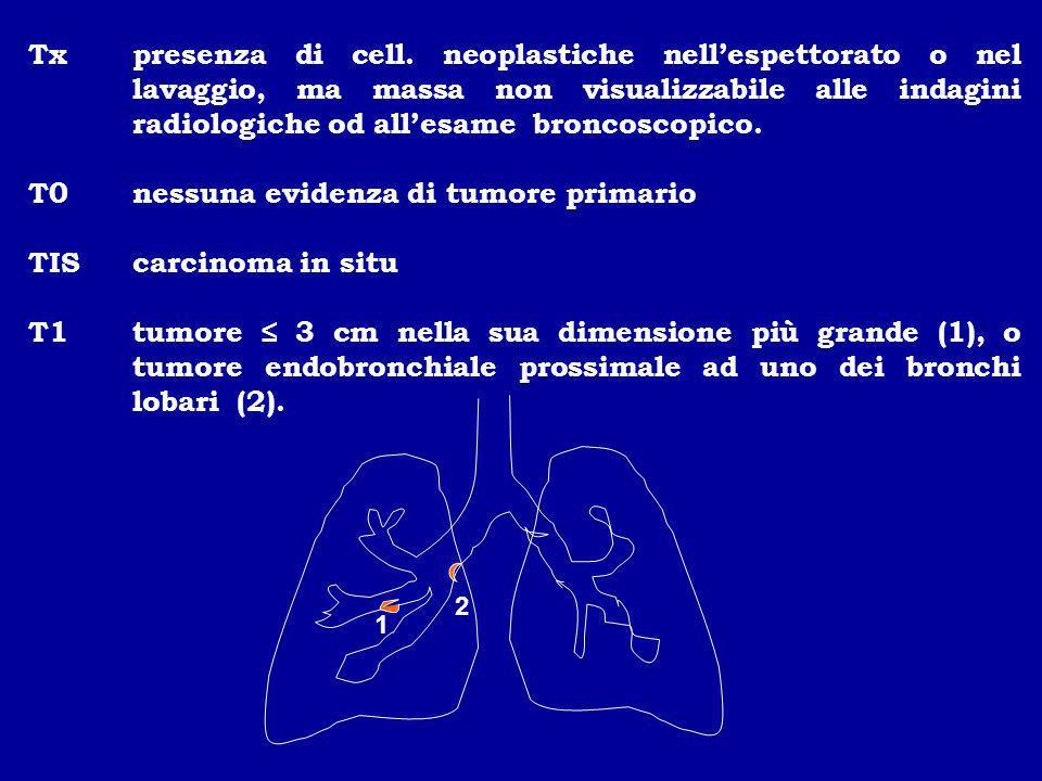 Txpresenza di cell. neoplastiche nellespettorato o nel lavaggio, ma massa non visualizzabile alle indagini radiologiche od allesame broncoscopico. T0n