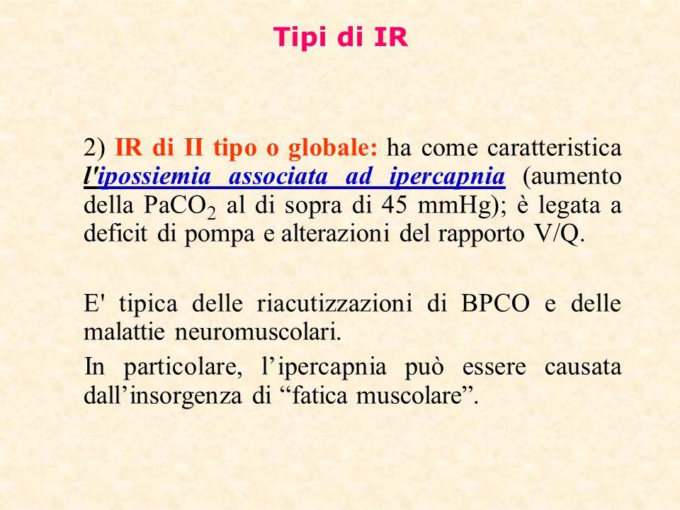Tipi di IR 2) IR di II tipo o globale: ha come caratteristica l'ipossiemia associata ad ipercapnia (aumento della PaCO 2 al di sopra di 45 mmHg); è le