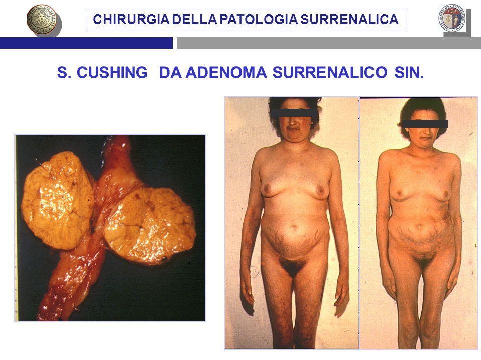 S. CUSHING DA ADENOMA SURRENALICO SIN. CHIRURGIA DELLA PATOLOGIA SURRENALICA