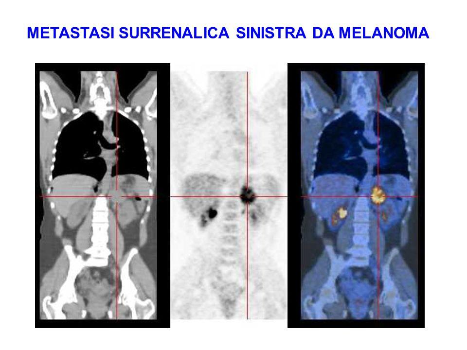 METASTASI SURRENALICA SINISTRA DA MELANOMA