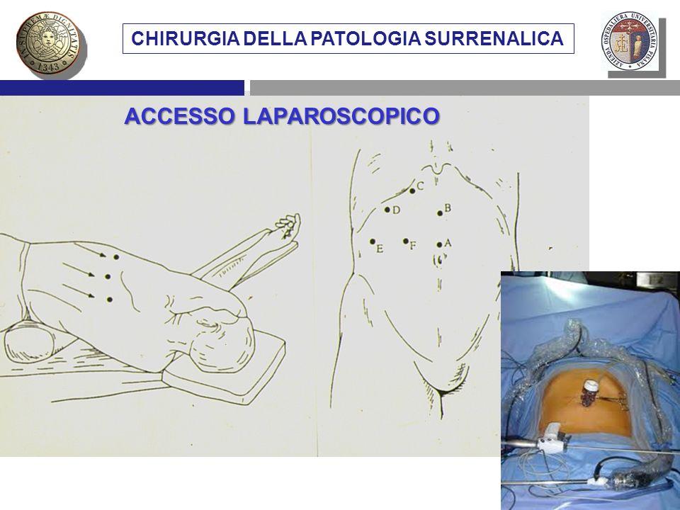 VIE DI ACCESSO CHIRURGICO AL SURRENE METASTASI SURRENALICHE CHIRURGIA DELLA PATOLOGIA SURRENALICA ACCESSO LAPAROSCOPICO