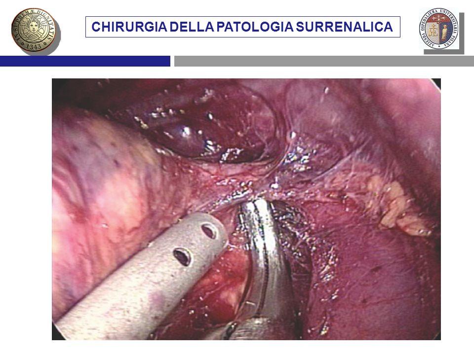 VIE DI ACCESSO CHIRURGICO AL SURRENE METASTASI SURRENALICHE CHIRURGIA DELLA PATOLOGIA SURRENALICA