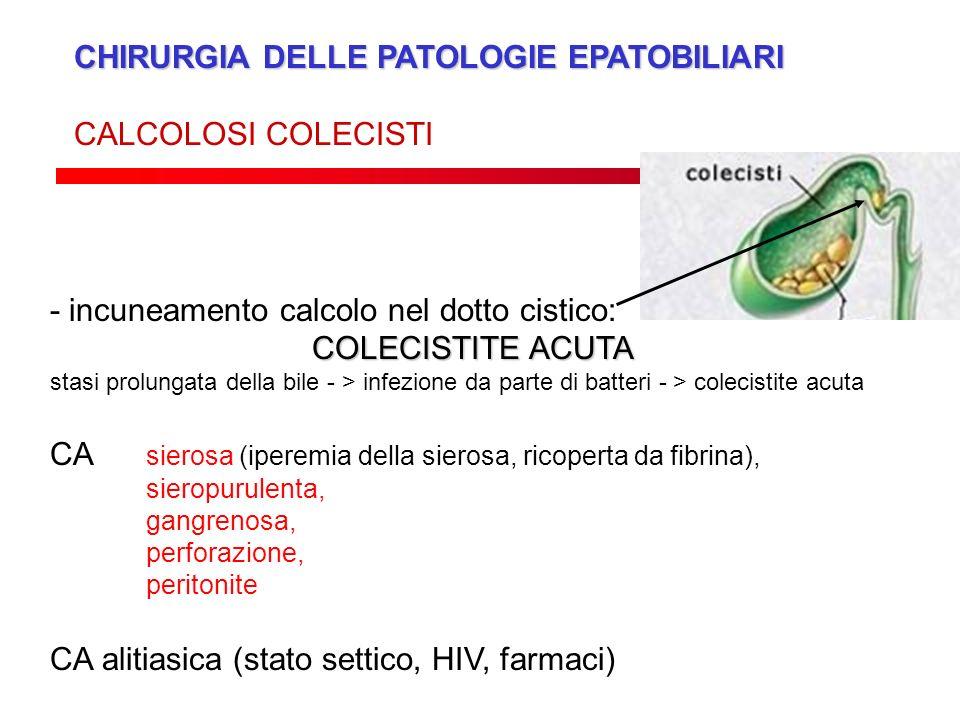 CHIRURGIA DELLE PATOLOGIE EPATOBILIARI CALCOLOSI COLECISTI - incuneamento calcolo nel dotto cistico: COLECISTITE ACUTA stasi prolungata della bile - >