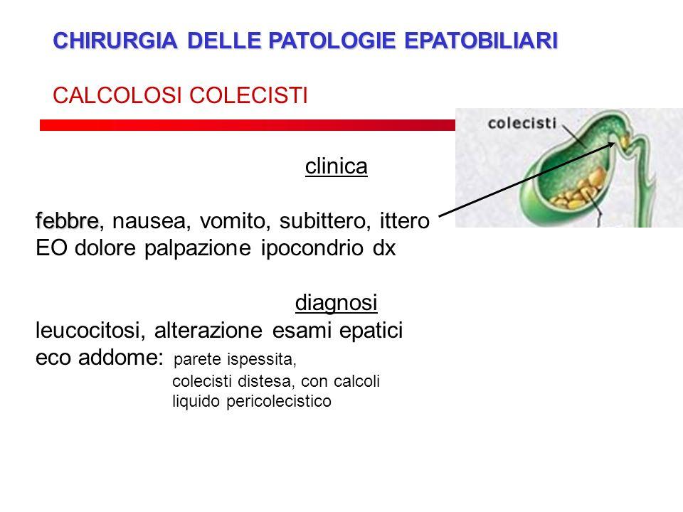 CHIRURGIA DELLE PATOLOGIE EPATOBILIARI CALCOLOSI COLECISTI clinica febbre febbre, nausea, vomito, subittero, ittero EO dolore palpazione ipocondrio dx