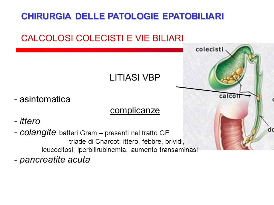 CHIRURGIA DELLE PATOLOGIE EPATOBILIARI CALCOLOSI COLECISTI E VIE BILIARI - asintomatica complicanze - ittero - colangite batteri Gram – presenti nel t