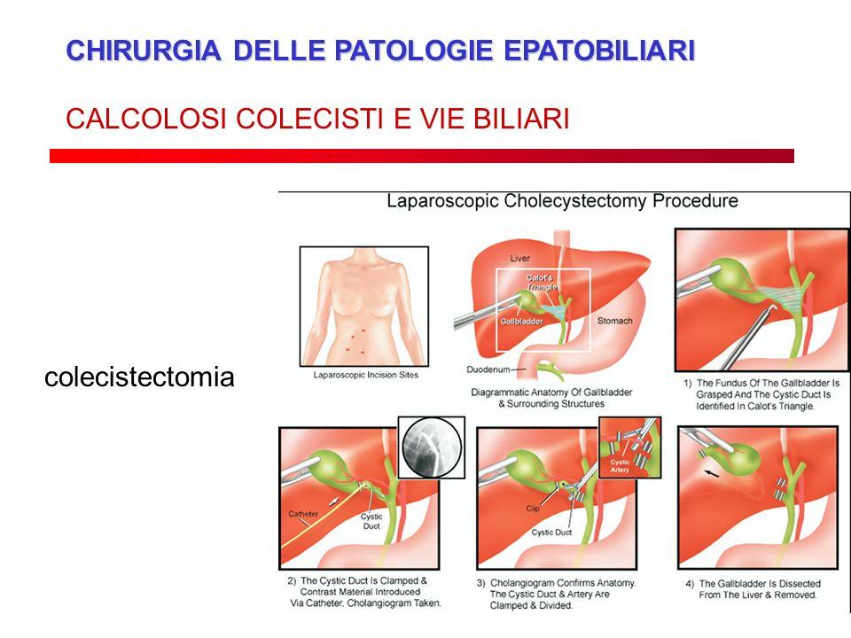 CHIRURGIA DELLE PATOLOGIE EPATOBILIARI CALCOLOSI COLECISTI E VIE BILIARI colecistectomia