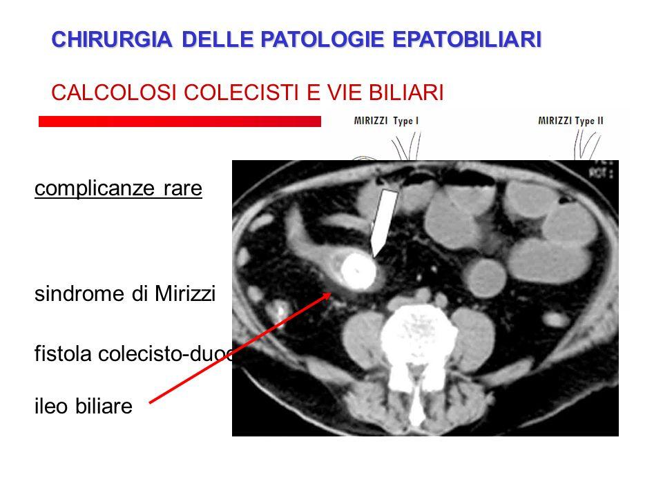CHIRURGIA DELLE PATOLOGIE EPATOBILIARI CALCOLOSI COLECISTI E VIE BILIARI fistola colecisto-duodenale, colecisto-colica ileo biliare complicanze rare s