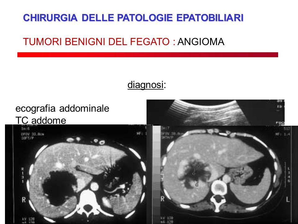 CHIRURGIA DELLE PATOLOGIE EPATOBILIARI TUMORI BENIGNI DEL FEGATO : ANGIOMA diagnosi: ecografia addominale TC addome RMN addome
