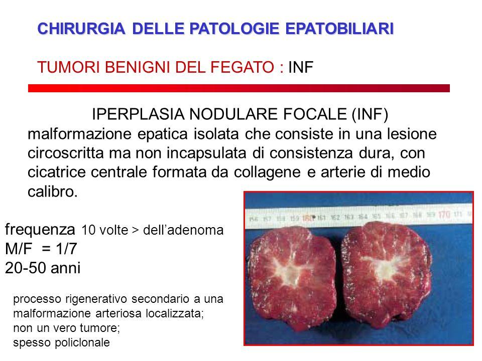 CHIRURGIA DELLE PATOLOGIE EPATOBILIARI TUMORI BENIGNI DEL FEGATO : INF IPERPLASIA NODULARE FOCALE (INF) malformazione epatica isolata che consiste in