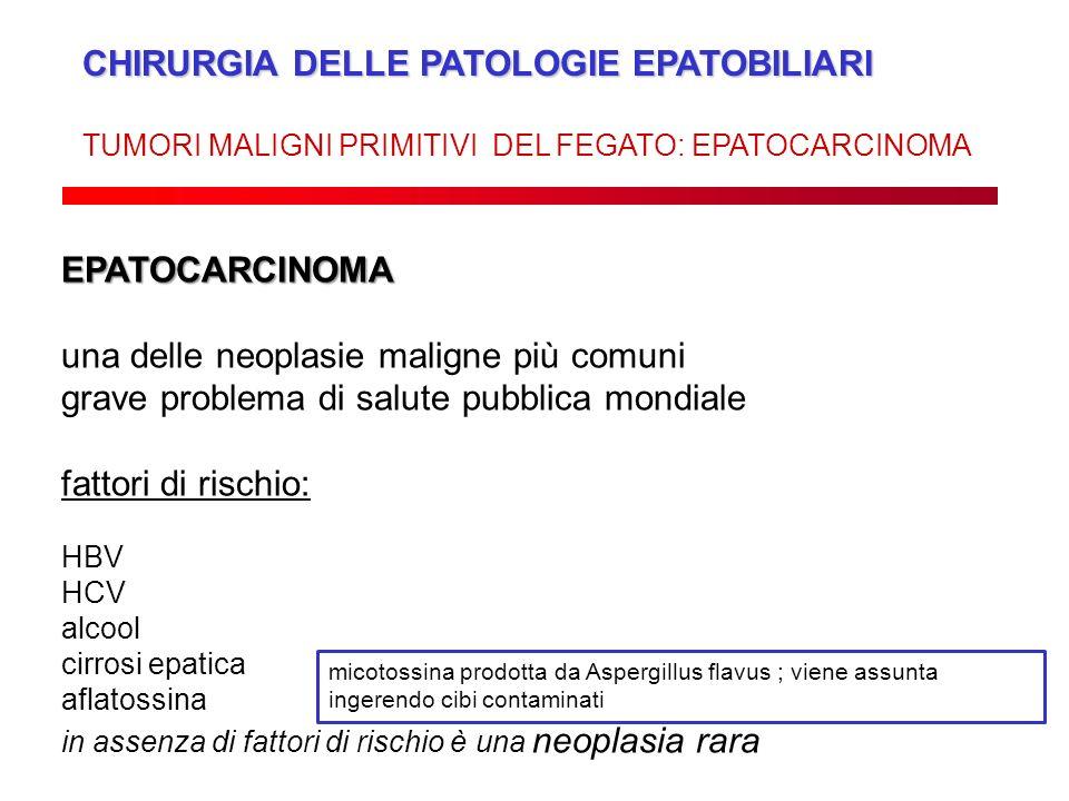 CHIRURGIA DELLE PATOLOGIE EPATOBILIARI TUMORI MALIGNI PRIMITIVI DEL FEGATO: EPATOCARCINOMA EPATOCARCINOMA una delle neoplasie maligne più comuni grave