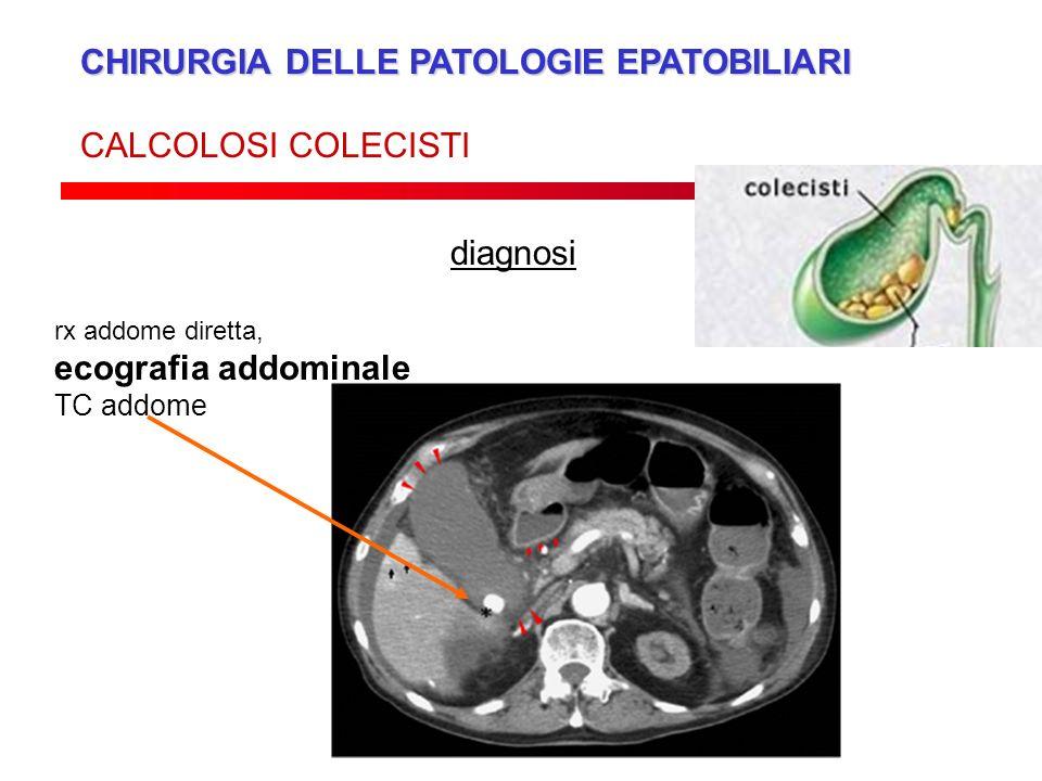 CHIRURGIA DELLE PATOLOGIE EPATOBILIARI CALCOLOSI COLECISTI diagnosi rx addome diretta, ecografia addominale TC addome