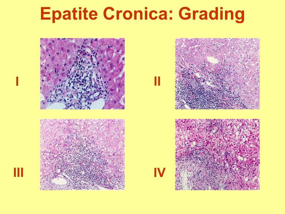 Epatite Cronica: Grading I II IV III