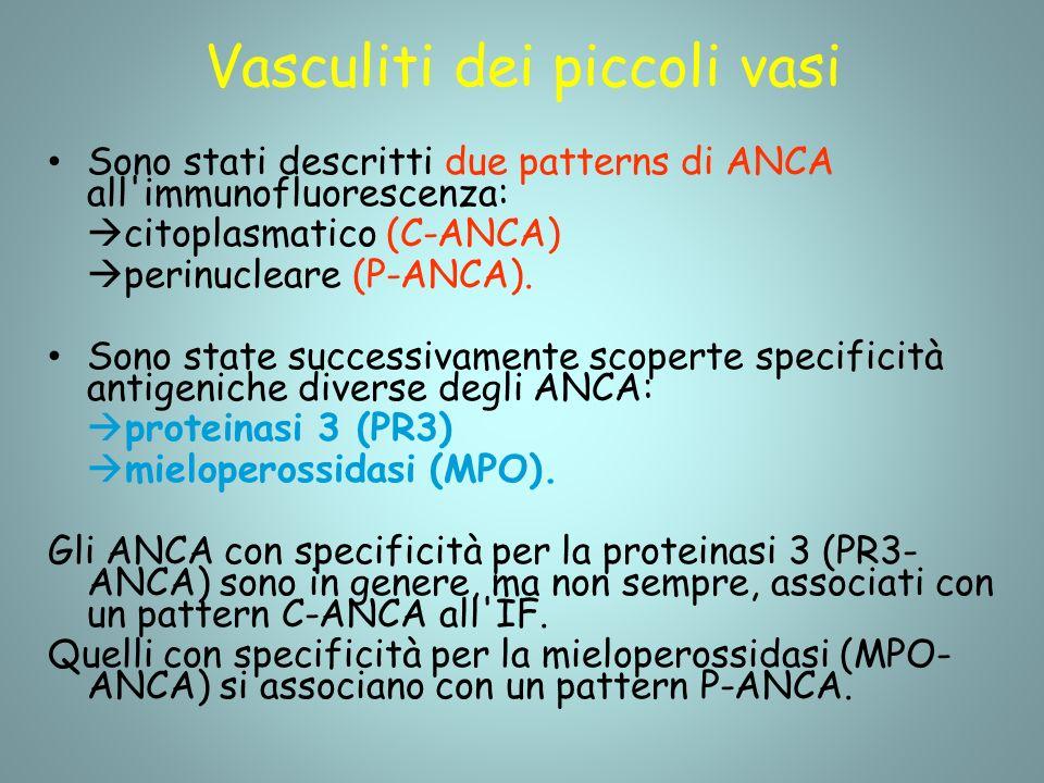 Vasculiti dei piccoli vasi Sono stati descritti due patterns di ANCA all immunofluorescenza: citoplasmatico (C-ANCA) perinucleare (P-ANCA).