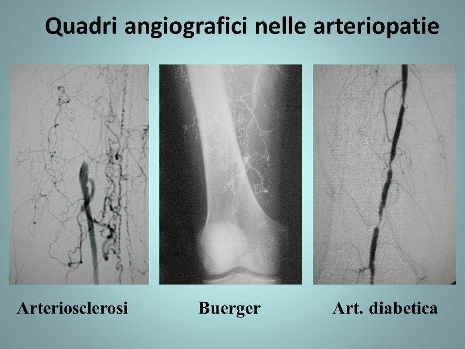 Quadri angiografici nelle arteriopatie Arteriosclerosi Buerger Art. diabetica